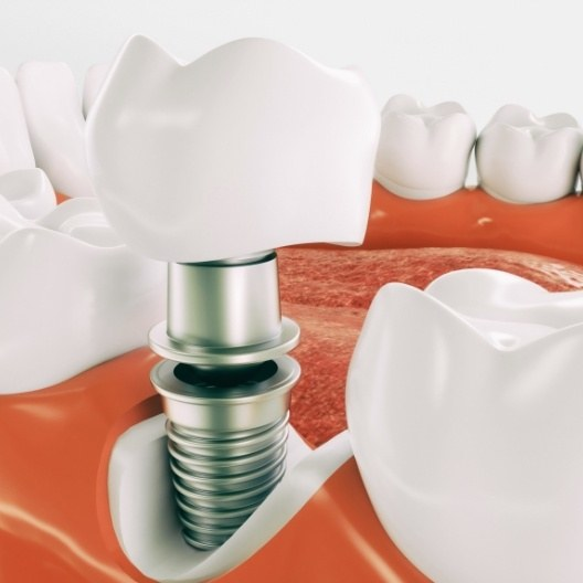Animated parts of dental implant replacement tooth