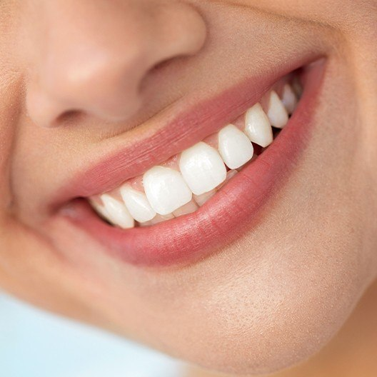 Woman sharing healthy smile after fluoride treatment